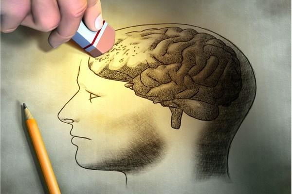 Envelhecimento Cerebral